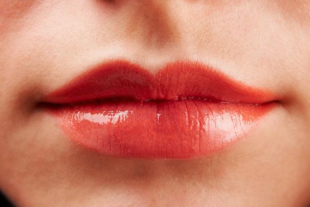 Povećanje usana2